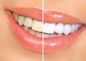 Whiten-Teeth