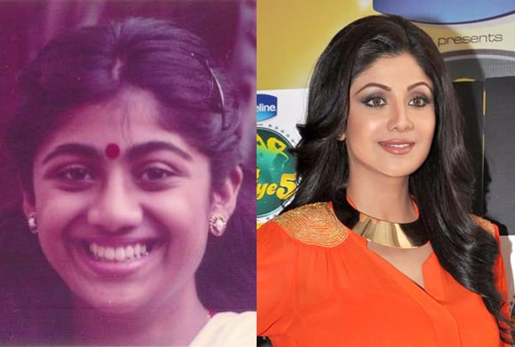 Bollywood-Cosmetic-Surgery-Shilpa-Shetty2