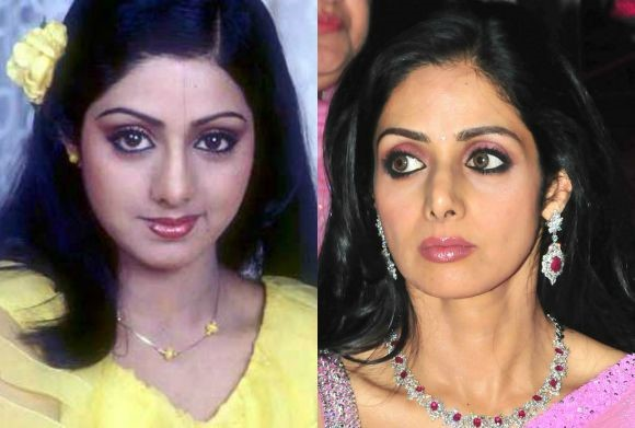 Bollywood-Cosmetic-Surgery-Sri-Devi