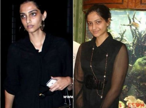 Sonam-Kapoor-without-Makeup