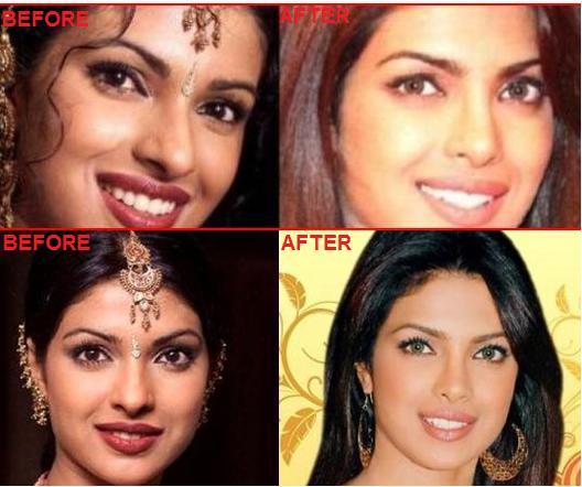 priyanka-chopra-plastic surgery