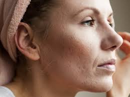 Skin care products which can remove acne scars